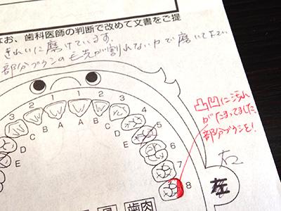 dental_check